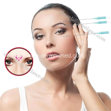 Effective PDO Thread Lift under Eyes